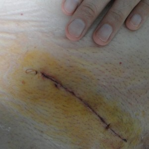 The incision, stained with iodine, two days later